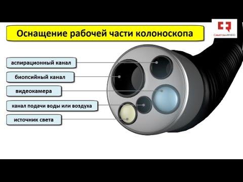 Колоноскопия с биопсией и полипэктомией: устройство колоноскопа, показания и этапы процедуры