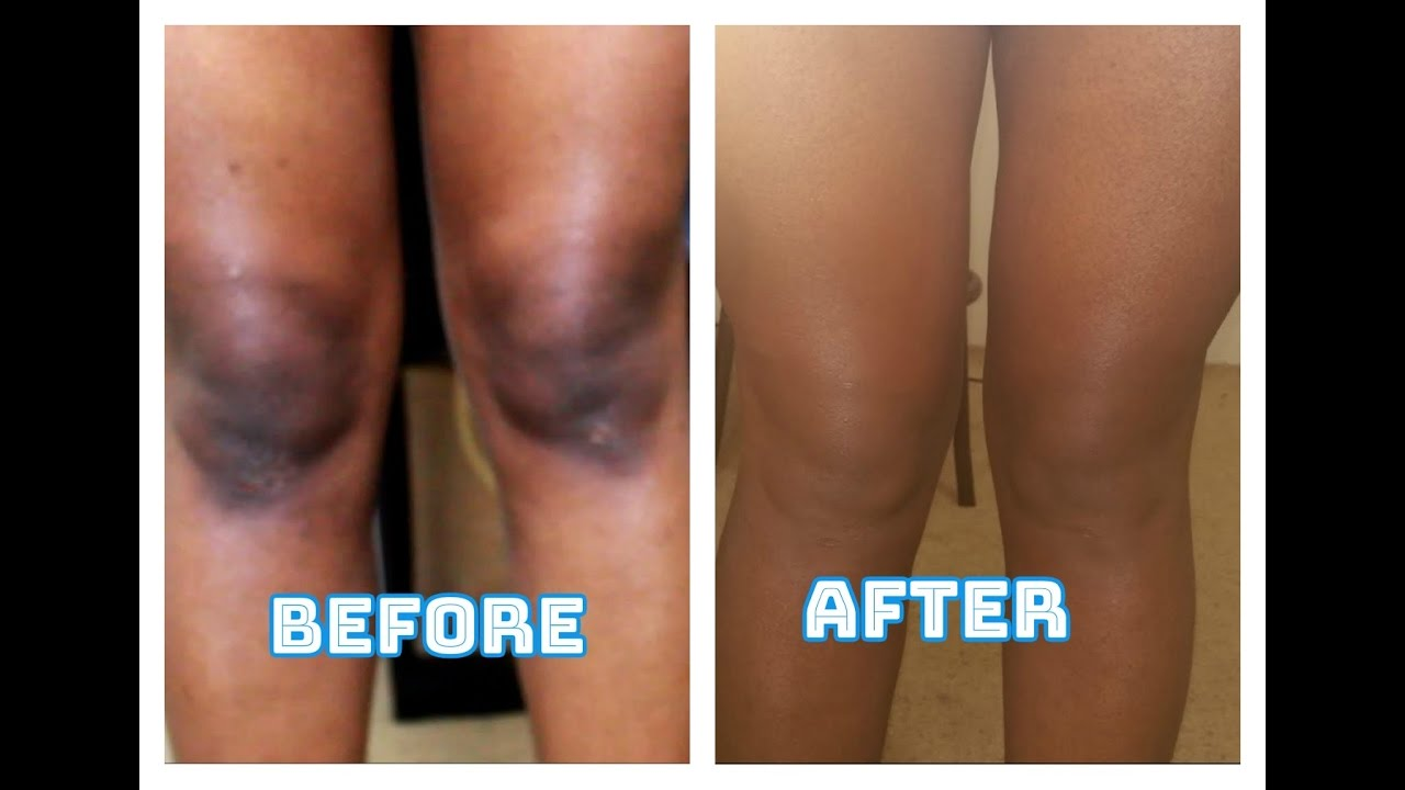 How To Get Rid Of Dark Knees Fast Naturally