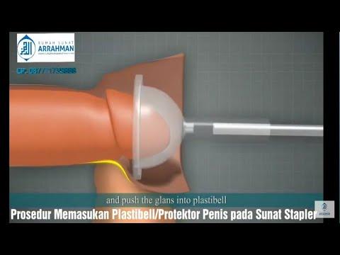 Prosedur Memasukkan Plastibell/Protektor Penis Sunat Stapler