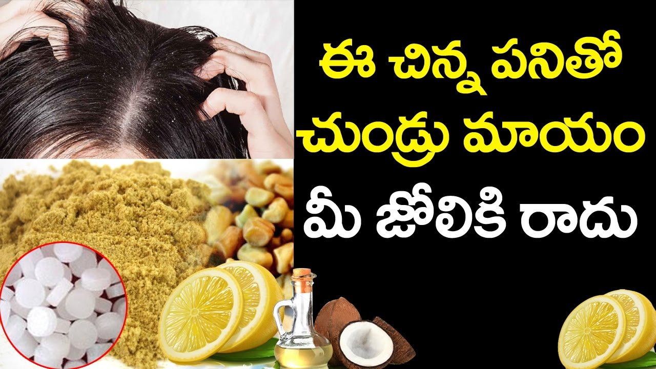 how to control dandruff home remedies