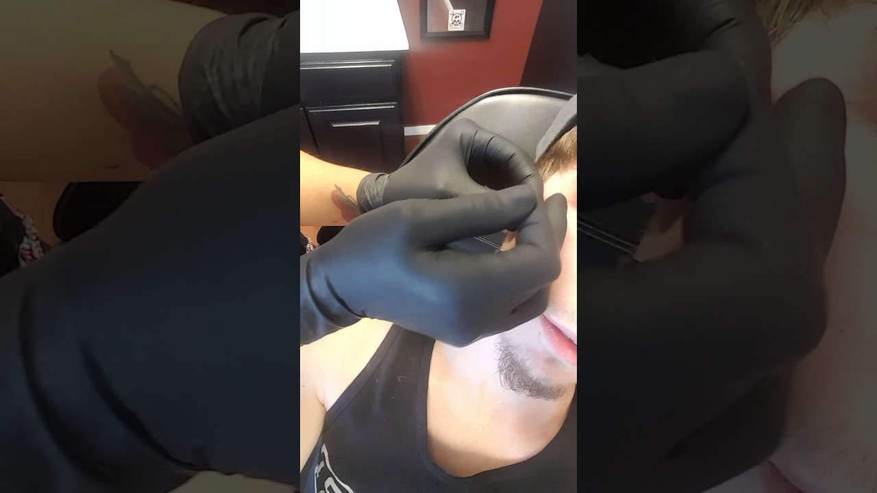 Anti Eyebrow Dermal Removal Youtube