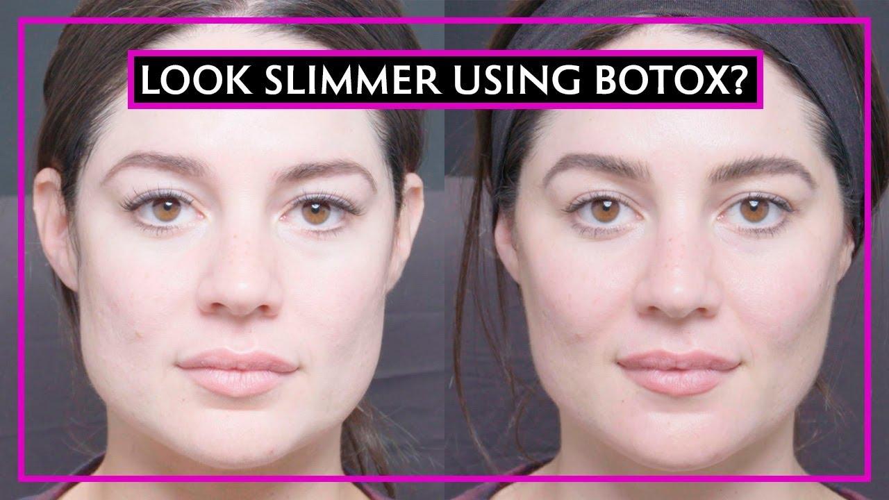 facial slimming botox