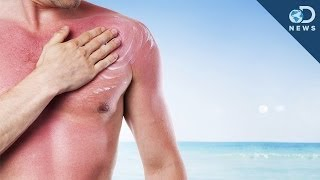 How Many Sunburns Can Cause Skin Cancer
