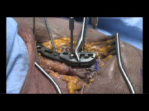 Stryker Trauma & Extremities | VariAx Clavicle Plating System | Superior Lateral Plating Technique