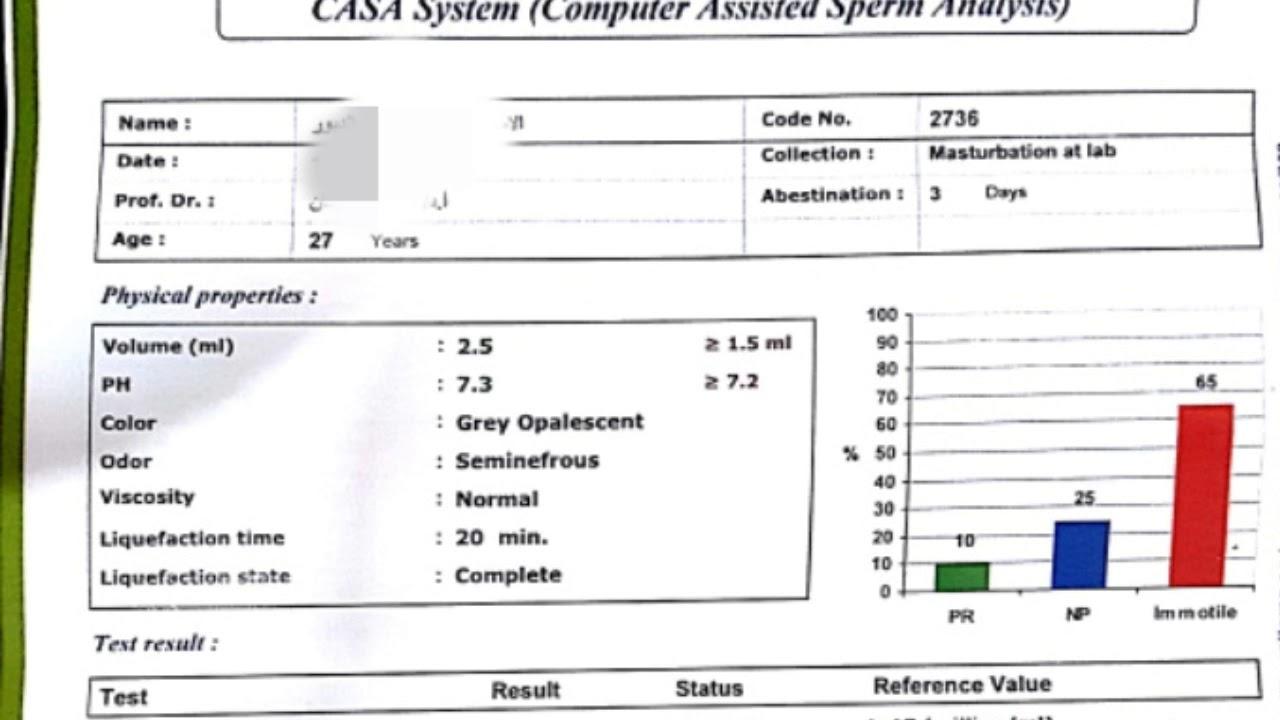 تحليل السائل المنوي بالكمبيوتر Casa Test Youtube