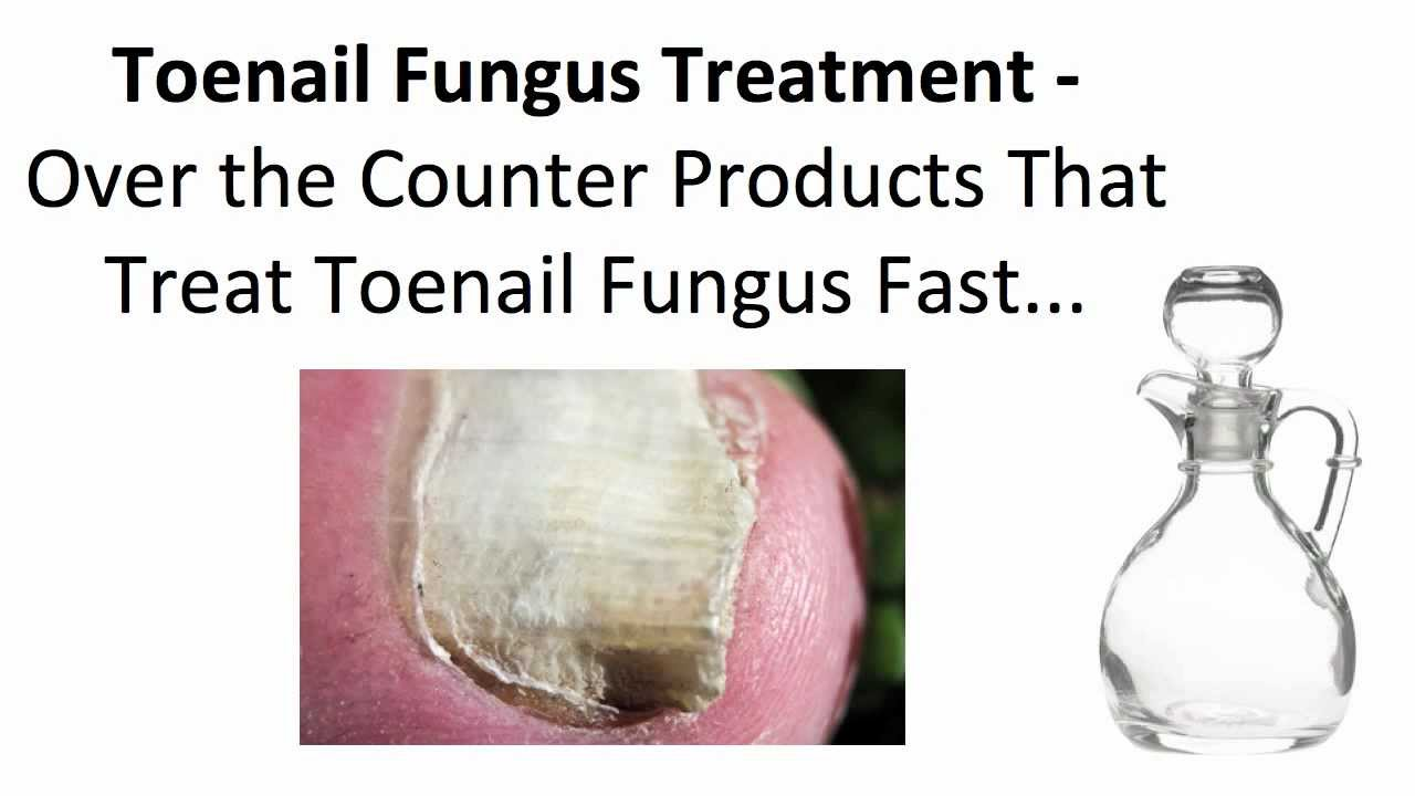 Toenail Fungus Treatment - Over the Counter Products That Treat ...
