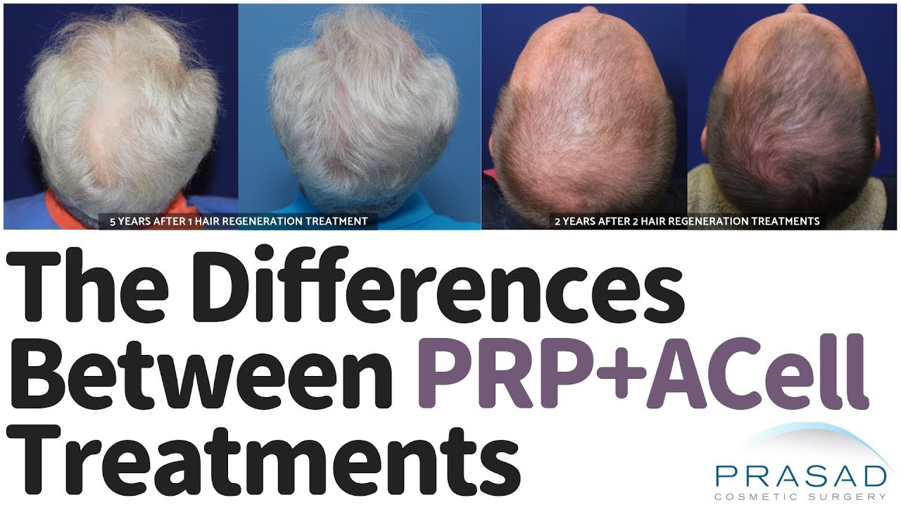 ACell + PRP Treatment: Why They Aren't All The Same | TrichoStem