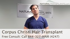 Best Hair Transplants Corpus Christi, Texas | Hair Replacement Surgery