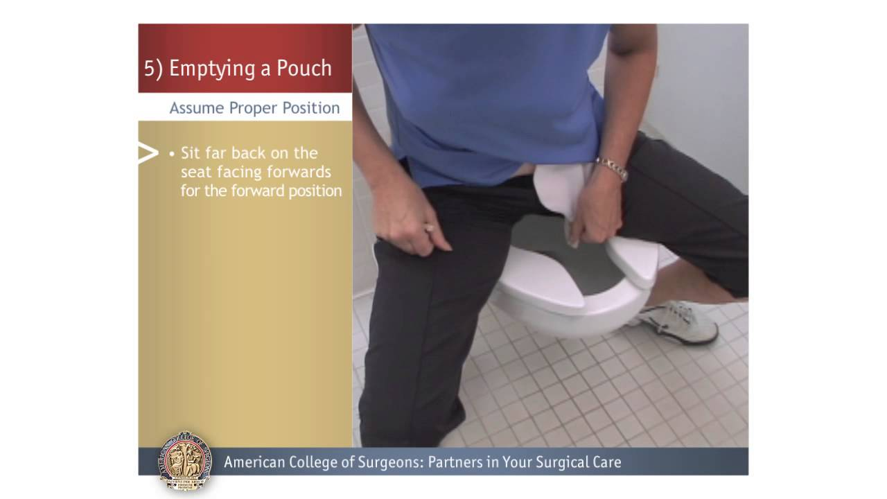 Colostomy Ileostomy Emptying A Pouch