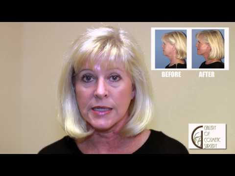 Orange County Facelift and Eyelid Lift - Dr Sadati Newport Beach