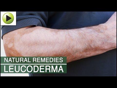Skin Care - Leucoderma - Natural Ayurvedic Home Remedies
