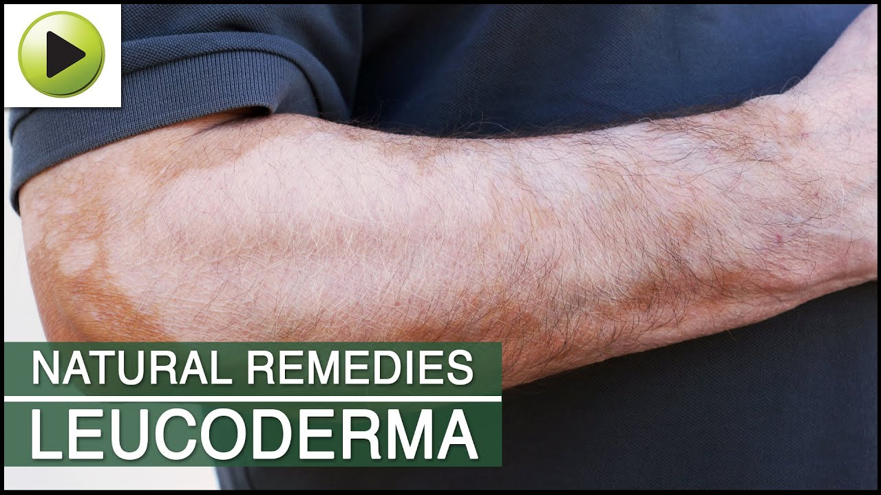 Skin Care Leucoderma Natural Ayurvedic Home Remedies Youtube