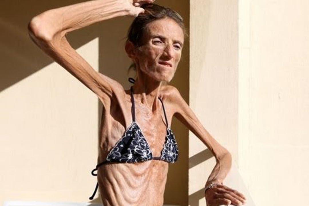 Worlds skinniest women naked, sex poland nude women