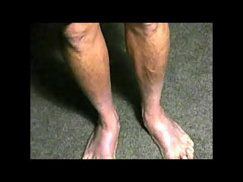 WHITE LEGS