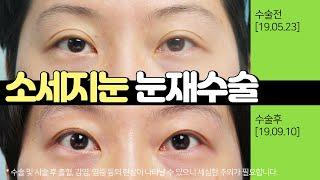 소세지눈 눈재수술 쌍수 후기 (절개+눈매교정+지방재배치…