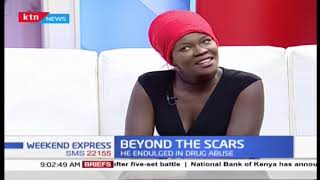 Weekend Express: Beyond the scars