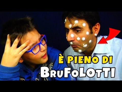 MIO PADRE È PIENO DI BRUFOLOTTI - Leo Toys