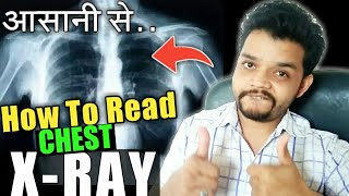 How To Read Chest X Ray In Hindi || Gyanear