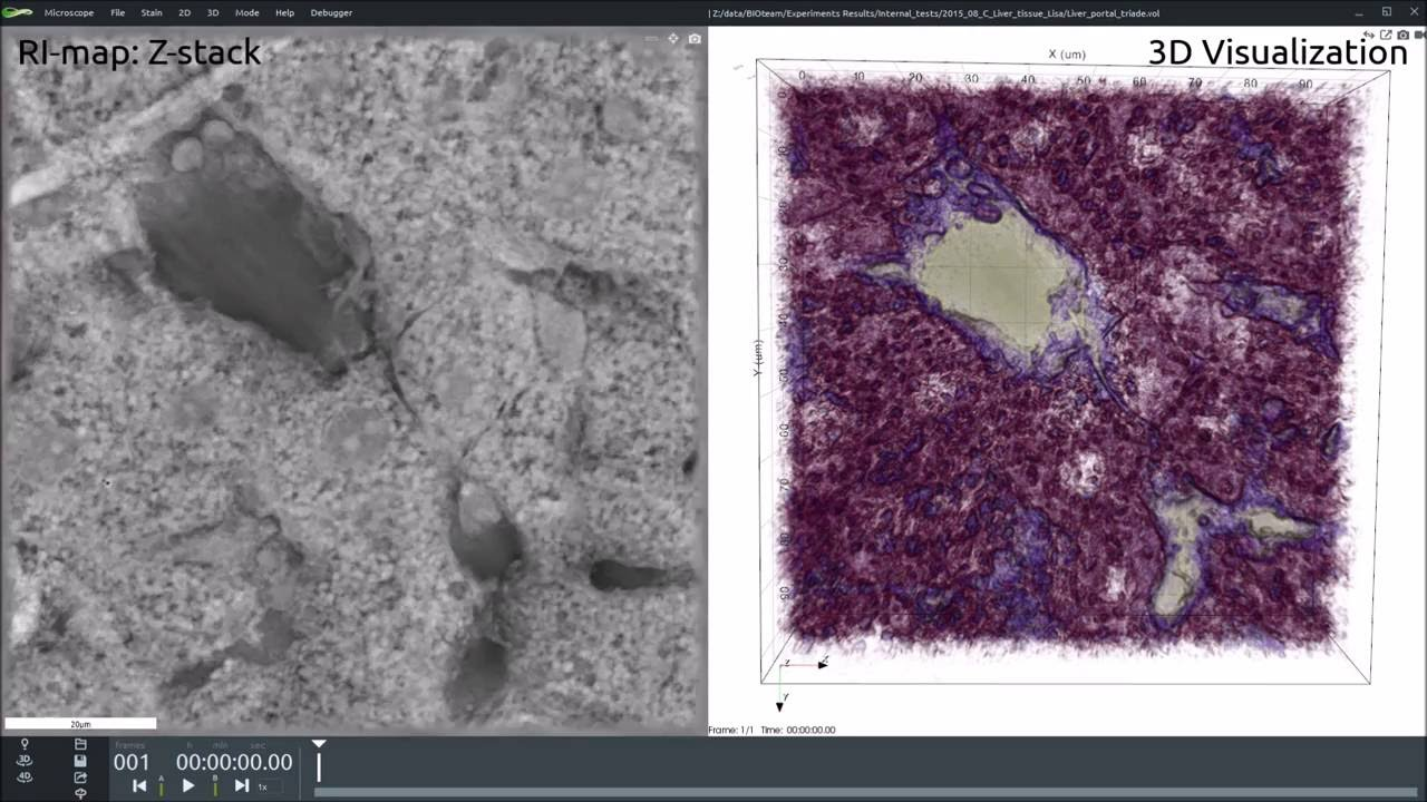 Portal Triad In Mouse Liver Youtube