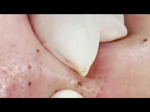 Remove Hidden Acne - Looks Like Nothing But Having Much #1