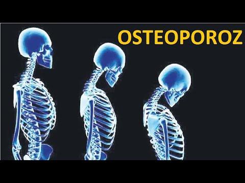 Osteoporoz  - təbii dərmanı