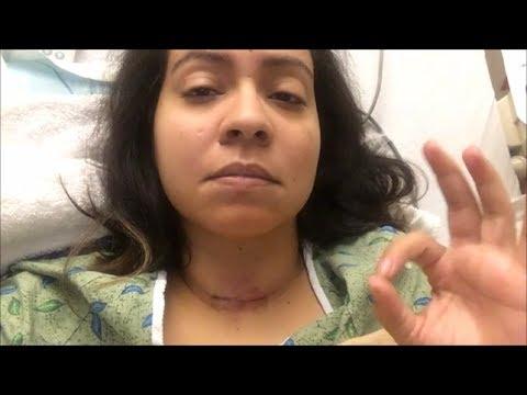 Thyroidectomy Post op