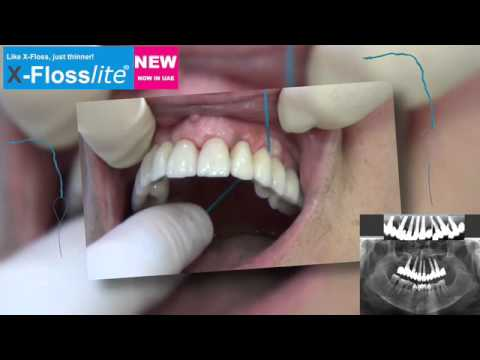 Cleaning your implants with X-Floss / Upper Jaw