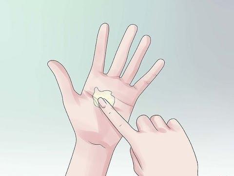 Cómo curar los hongos de la vagina - Candidiasis