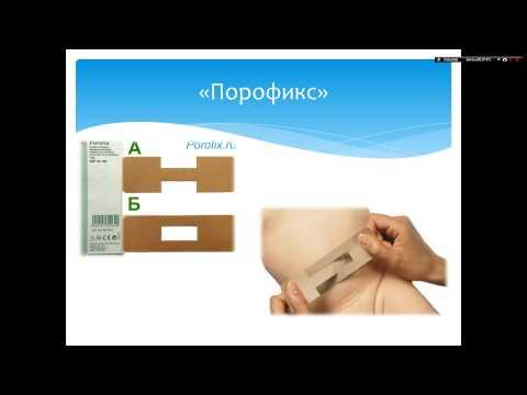 Симптомы и признаки пупочной грыжи