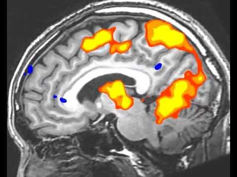 Ишемический инсульт головного мозга – причины, симптомы и