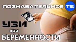 УЗИ при беременности (Познавательное ТВ, Ирина Волынец)(Ирина Волынец: УЗИ при беременности. Часть из рассказа Ирины Волынец