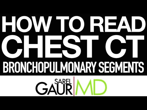 How To Read Chest Ct Bronchopulmonary Segments Youtube