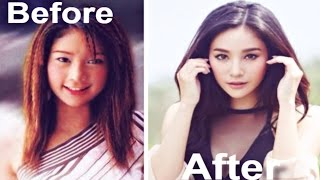 Thai Actresses Before & After Plastic Surgery | Thai Celebrity Fever