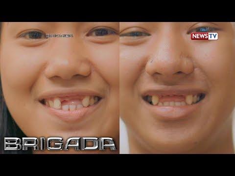 Brigada: Pinapahalagahan ba ng mga Pinoy ang oral hygiene?