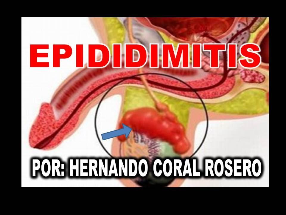 EPIDIDIMITIS (INFLAMACIÓN QUE CONECTA EL TESTICULO CON EL EPIDÍDIMO ...