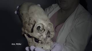FINALLY: DNA Results Of The Paracas Elongated Skulls Of Peru: 2018