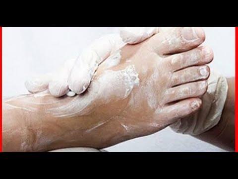 Как лечить потертости на ногах от обуви