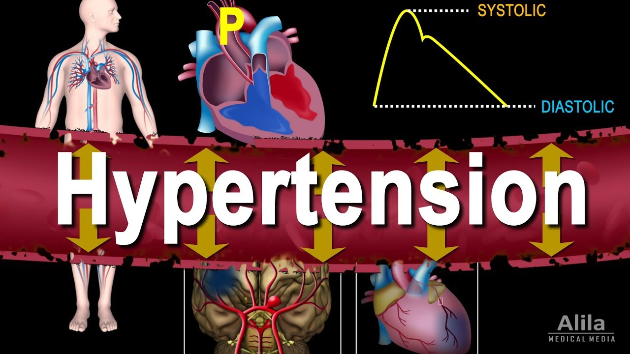 Hypertension - High Blood Pressure, Animation