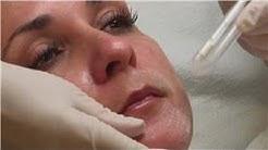 hqdefault - B-liftx Peel For Acne