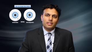 Cataract Replacement Lens Options - Milan Eye Center