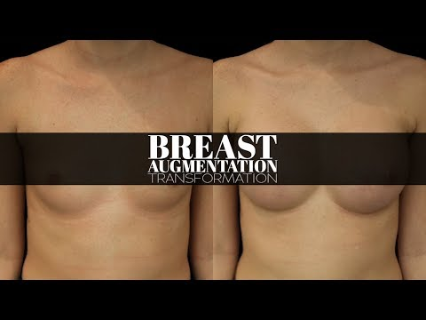 [TRANSFORMATION] Breast Augmentation by Dr. Erick Sanchez in Baton Rouge