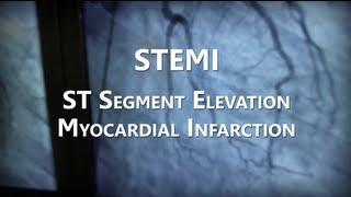 NHRMC Heart Center - STEMI Training Video