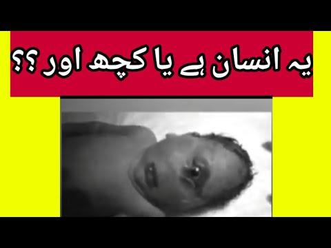 Reality Of Human Baby With One Eye || Is It Dajjal ?