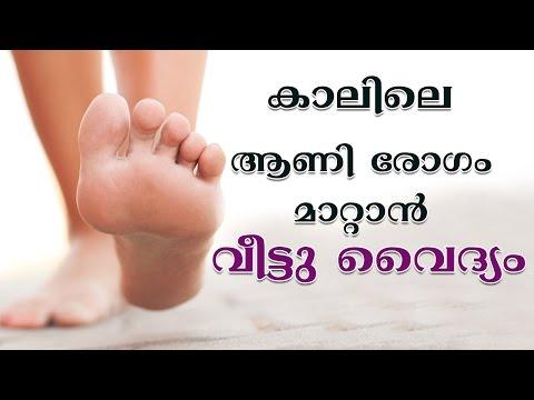 കാലിലെ ആണി രോഗം മാറ്റാൻ വീട്ടു വൈദ്യം | Skin Care | Corns | Natural Ayurvedic Home Remedies