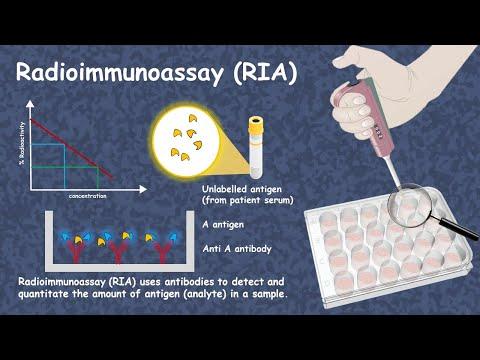 Radioimmunoassay( RIA)