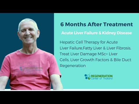 Stem Cell Therapy for Liver Cirrhosis & Kidney Damage - 6 Mo After Treatment 2018