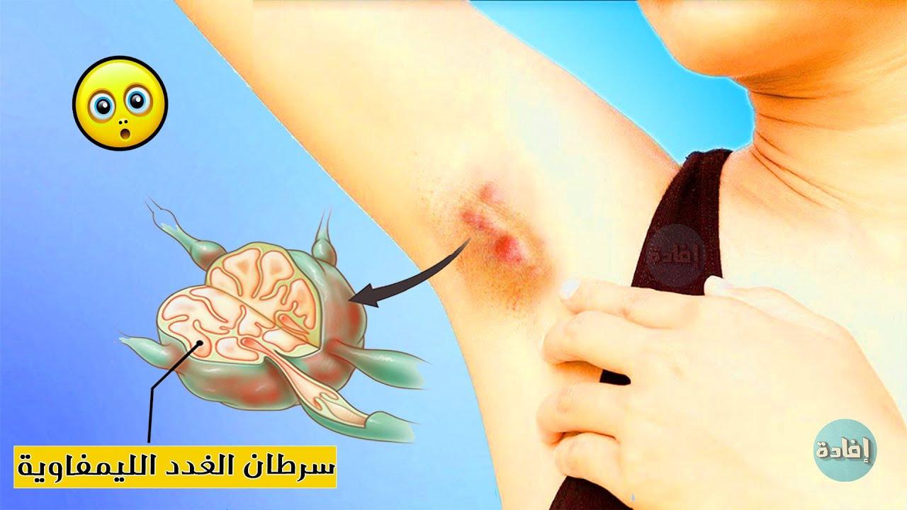 أسباب التهاب الغدد الليمفاوية
