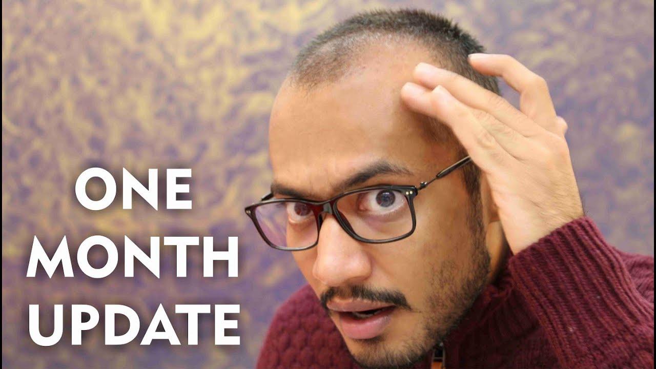 Hair Transplant 1 Month Post Surgery Shedding Phase Youtube