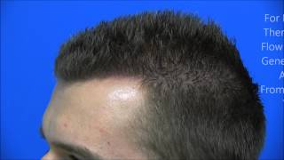Dr Hasson Hair Transplant Surgery: Hairline Restoration,  2249 Grafts in 1 session