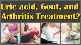 Uric Acid, Gout, Arthritis, Joint Pain Symptoms and Treatment at Home | Gout Symptoms